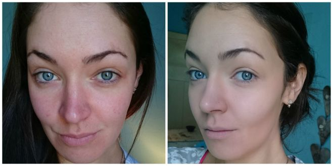 Before and After sorme treatment cosmetics foundation