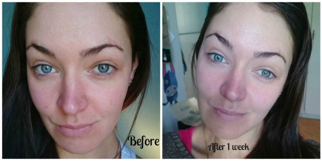 Lancome week 1 before and after .
